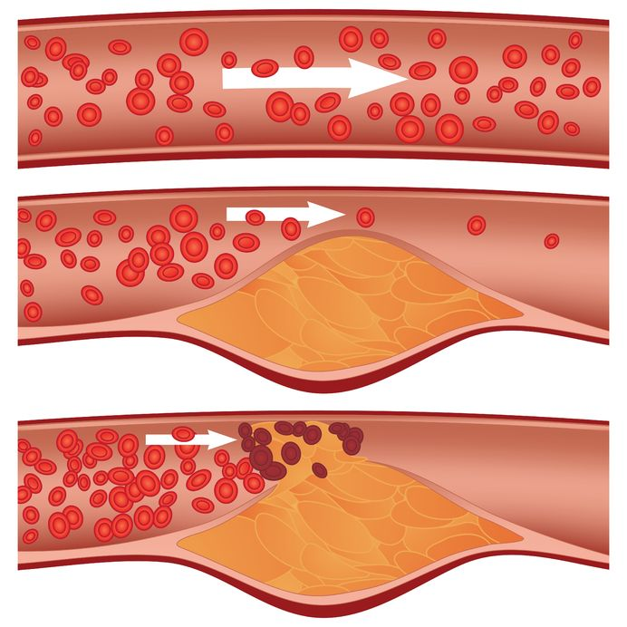 cholesterol | Acupuncture | Physical Therapy | Chiropractor | Pain Management | Forest Hills, NY